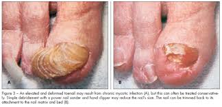 Infected Fingernail Bed by Ingrown Toenails Current Procedures To Treat Acute And Chronic