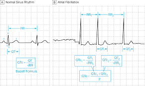 rr interval normal range what clinicians should about the qt interval jama the