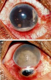 B Iris Prolapse That Occurs Thru The Opening Of Surgical Excision Post Operatively Cataract Surgery
