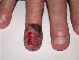 Nail Bed Melanoma by Nail Bed Biopsy