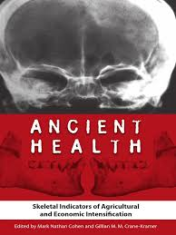 Ancient Health Skeletal Indicators Of Agricultural And Economic Intensific