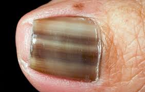Receding Nail Bed by Nail Abnormalities A Visual Guide