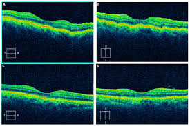 Figure 2 The Horizontal Line Scan From SD OCT Of Right Eye Patient Demonstrates Subtle Chorioretinal Folds A Vertical More
