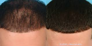 Minoxidil Shedding Phase Pictures by Prp Platelet Rich Plasma Acell Biod Ecms Bauman Medical Group
