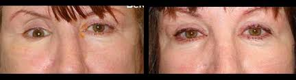 Fracture Orbital Floor Treatment by Eye Trauma Fracture Orbital Blow Out Treatment Beverly Hills