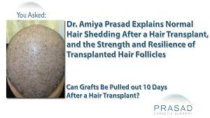 Why Hair Grafts are so Strong they Can t Fall Out & Normal Hair