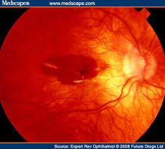 Management Of Choroidal Neovascularization In Myopic Macular