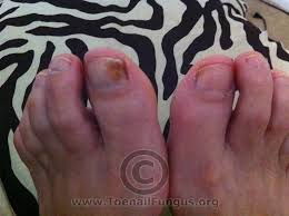 Toenail Separated From Nail Bed by Toenail Fungus Pictures Added By Viewers U2013 Toenail Fungus