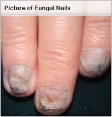 Toenail Separated From Nail Bed by Nail Fungus Treatment Symptoms Medications Causes U0026 Pictures
