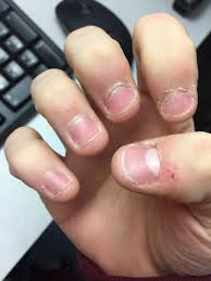 Receding Nail Bed by My Fingers Have Always Been Like This And People Mention It Often
