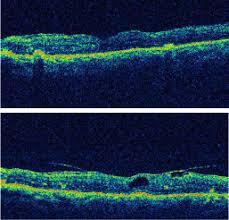Epiretinal Membrane ERM 812