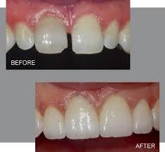 Linden Hills Dentistry Dental Bonding
