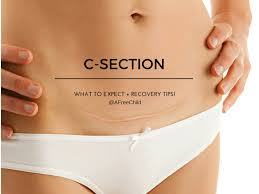 What to Expect in Second C Section and Tested recovery tips