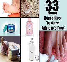 33 Top Home Reme s To Cure Athlete s Foot