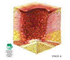 pressure ulcers after surgery risk factors and prevention