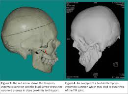Orbital Floor Fracture Non Blowout by 32 Fractures Of The Zygoma Short Notes In Plastic Surgery