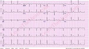 Atrial Fibrillation ECG 3