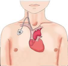 pose d une chambre implantable chambre implantable centre de chirurgie viscérale et digestive du