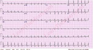 Atrial Flutter with Variable Conduction ECG 3