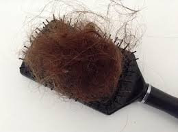 How much Hair Loss is Normal Thickhair