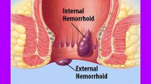 How To Remove External Hemorrhoids Without Surgery