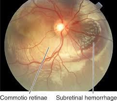 Retina And Choroid