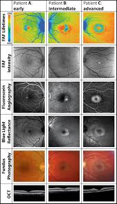 Fluorescence Lifetime Imaging Ophthalmoscopy A Novel Way To Assess