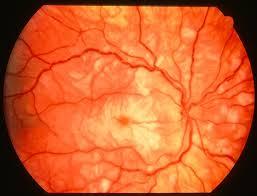 Purtscher Retinopathy 2 Right Eye