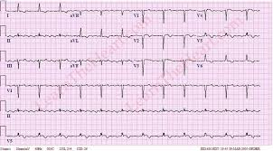 Atrial Flutter with 4 1 Conduction ECG 2
