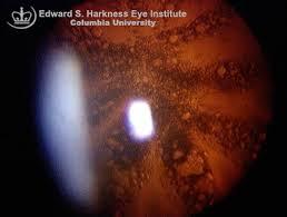 Christmas Tree Cataract Myotonic Dystrophy by Demographics