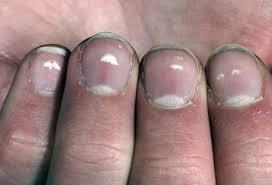 white spots on nails marks patches dots fingernails toenails
