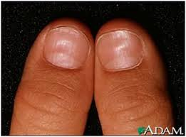 White Spots On Nail Beds by Oh My Darn Nails 6 Things Your Nails Are Trying To Tell You