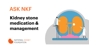 6 easy ways to prevent kidney stones national kidney