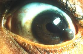 By Community Eye Health Puncture Wound Of Cornea With Iris Prolapse