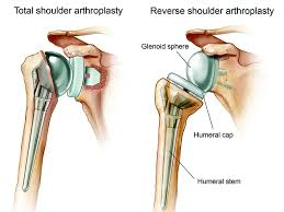 The Options For Shoulder Dislocations And Replacements Are Becoming More Sophisticated Heres An Update On Developments