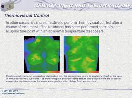 medical infrared thermography ppt video online download