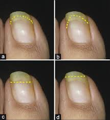 Toenail Separated From Nail Bed by Ingrown Toenails Khunger N Kandhari R Indian J Dermatol