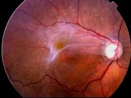 An Epiretinal Membrane Is A Condition Where Very Thin Layer Of Scar Tissue Forms On The Surface Retina Vision Sharpest Macula