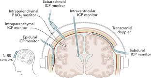 cerebral autoregulation oriented therapy at the bedside a