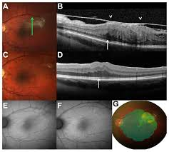 Of A 26 Year Old Man With Slight Elevation At The Temporal Macula And Hyperpigmentation Epiretinal Membrane Retinal Vessel Tortuosity