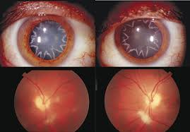 Christmas Tree Cataracts Causes by Electrocution Causes Star Shaped Cataracts On Man U0027s Eyes Cbs News