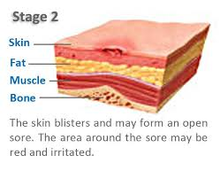 67 best pressure images on pinterest wound care pressure ulcer