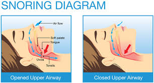 How Does a Snore Pillow Work to Stop Snoring