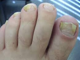 Toenail Separated From Nail Bed by 17 Home Remedies For Toenail Fungus Home Remedies