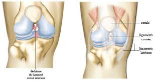 genoux déchirure ligament du genou douleur de genou