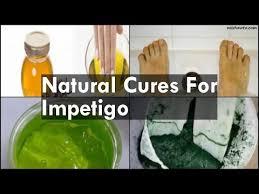 Natural Cures For Impetigo