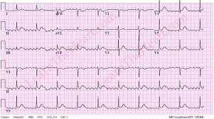 Atrial Flutter with 6 1 Conduction ECG