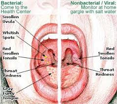 Home Reme s for Tonsillitis Treatment Symptoms Causes Diet