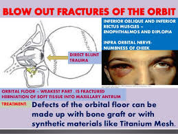 Fracture Orbital Floor Treatment by Maxillo Trauma Bailey And Love
