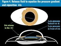 Simply Depressing The Iris And IOL Flattening Anterior Chamber Will Immediately Neutralize Pressure Gradient Return To Its